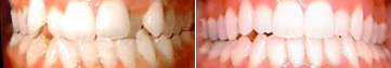 invisalign-before-after-nj-1