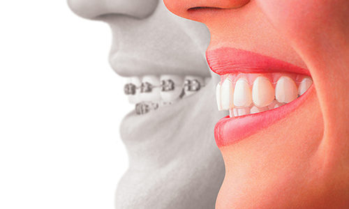 Invisalign: Why NJ Patients Should Try It